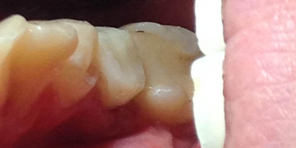 Задача восстановить разрушенную коронку зуба