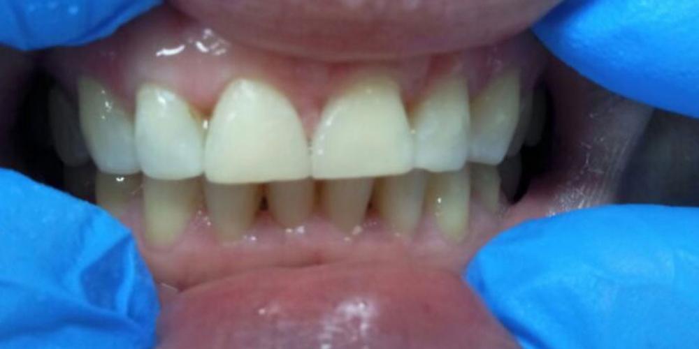Результат реставрации центральных зубов