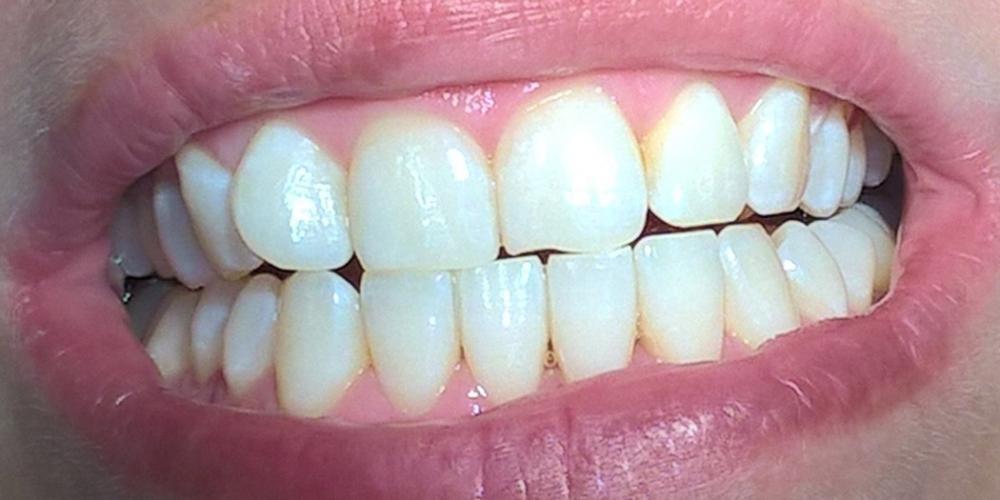 Результат отбеливания зубов по системе Amazing White