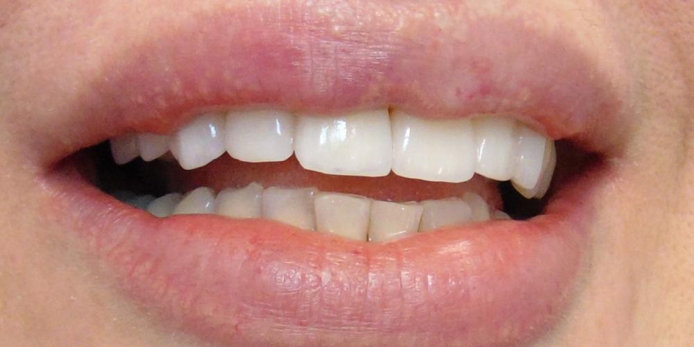 Изготовление керамических виниров на передние зубы