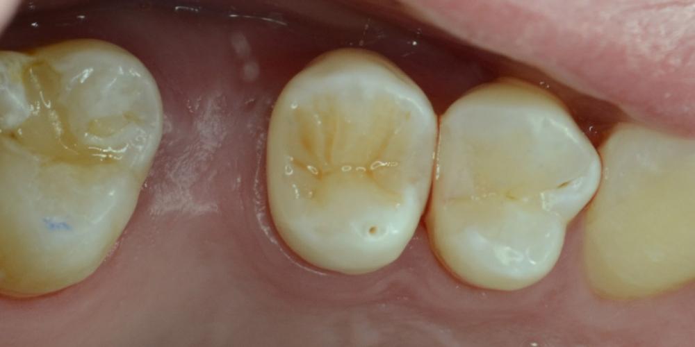 Художественная реставрация жевательного зуба материалом Charisma