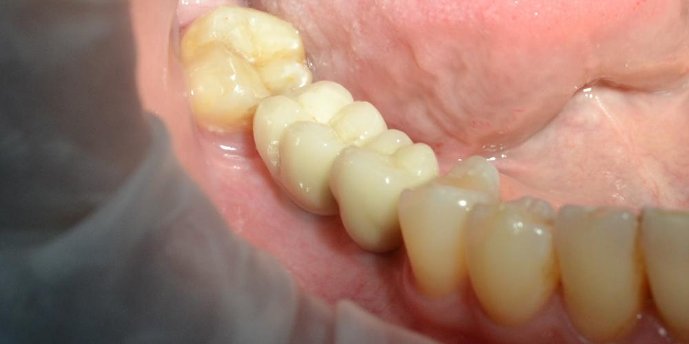 Пациентке было установленно 2 имплантата в области 45, 46 зубов