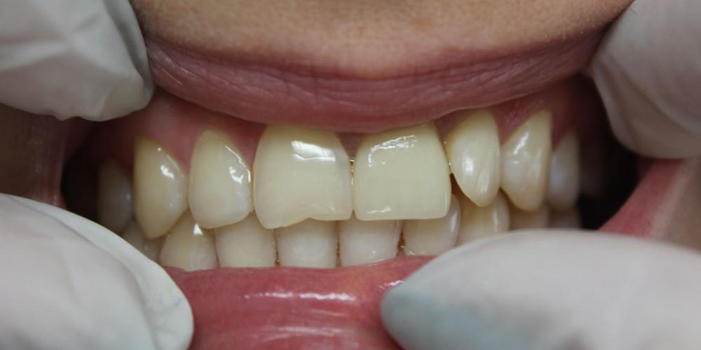 Восстановление центрального зуба  диоксид циркониевой коронкой