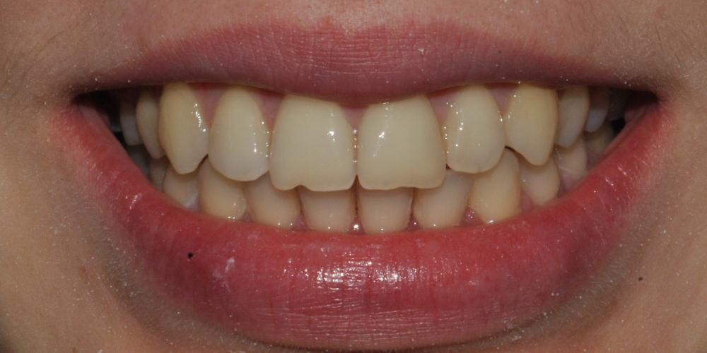Ортодонтическое лечение с применением многопетлевой дуги, металлических самолигирующихся брекетов
