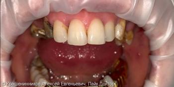 Протезирование при помощи керамических коронок фото до лечения