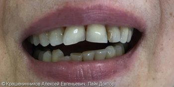 Установлены композитные виниры на передние зубы, до и после фото до лечения