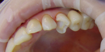 Восстановление зуба с помощью керамической вкладки фото до лечения