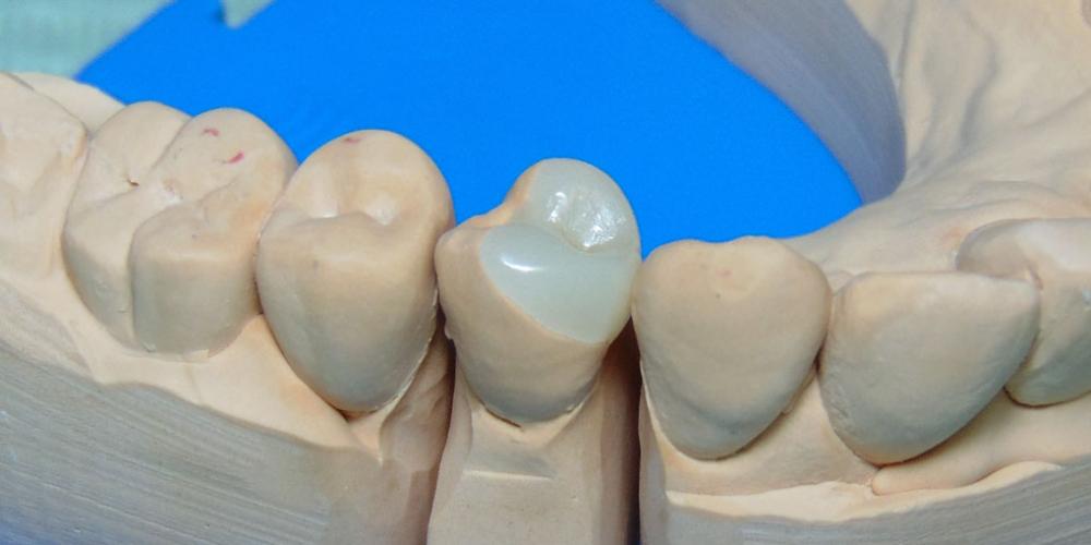 Восстановление зуба с помощью керамической вкладки