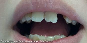 Адгезивный мост на передние зубы фото до лечения