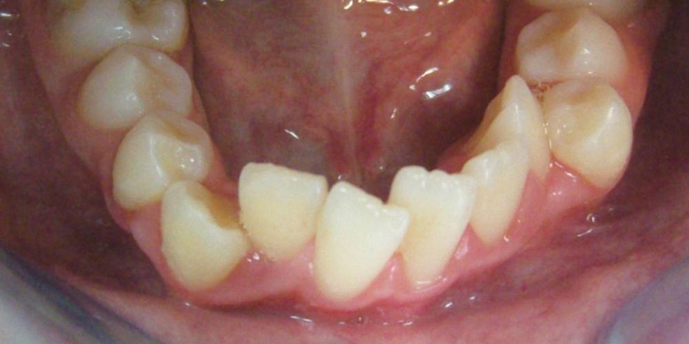 Фото до установки брекетов, нижняя челюсть. Результат исправления прикуса металлическими брекетами