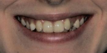 Скрученность передних зубов на верхней и нижней челюсти фото до лечения