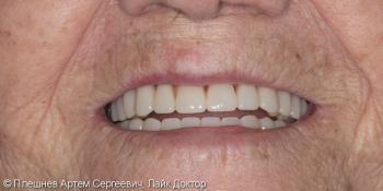 Полный съемный протез верхней и нижней челюстей фото после лечения