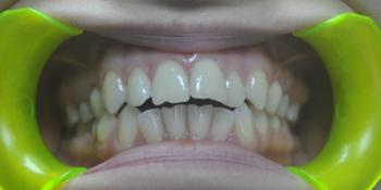 Ортодонтическое лечение с применением многопетлевой дуги, металлических самолигирующихся брекетов фото до лечения