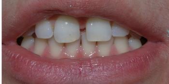 Убрали диастему между передними зубам верхней челюсти, до и после фото до лечения