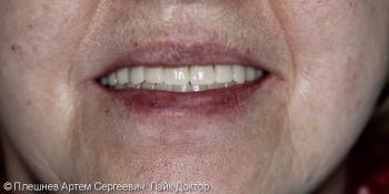 Полное обратился съёмное протезирование верхней и нижней челюсти фото после лечения