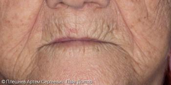 Полный съемный протез верхней и нижней челюстей фото до лечения