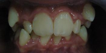 Результат исправления прикуса металлическими брекетами фото до лечения