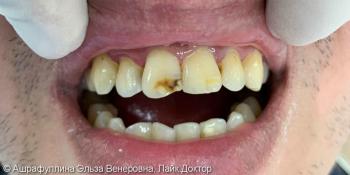 Реставрация центральных зубов верхней челюсти фото до лечения