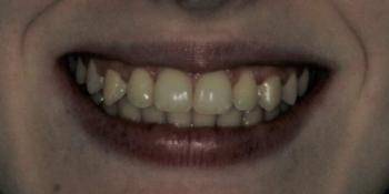 Скрученность передних зубов на верхней и нижней челюсти фото после лечения