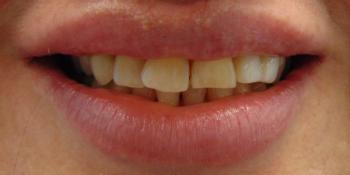 Изготовление керамических виниров на передние зубы фото до лечения