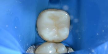 Доктор у меня дырка в зубе! фото после лечения