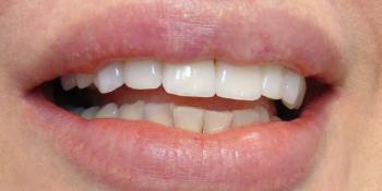 Изготовление керамических виниров на передние зубы фото после лечения