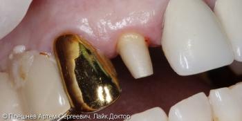 Восстановление 12 зуба коронкой фото до лечения