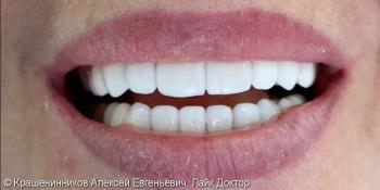 Установка 20 керамических виниров на зону улыбки, до и после фото после лечения