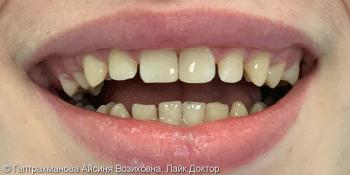 Реставрация центральных зубов верхней челюсти фото после лечения