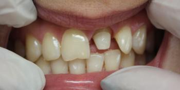 Восстановление центрального зуба  диоксид циркониевой коронкой фото до лечения