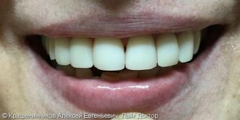 Установлены композитные виниры на передние зубы, до и после фото после лечения