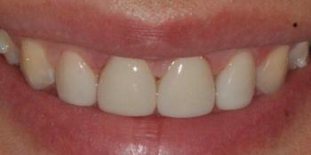 Убрали диастему между передними зубам верхней челюсти, до и после фото после лечения