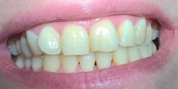 Результат отбеливания зубов по системе Amazing White фото до лечения