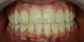 Результат исправления прикуса металлическими брекетами фото после лечения