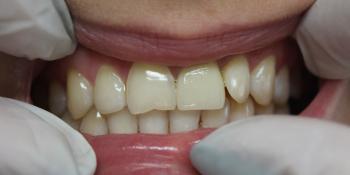 Восстановление центрального зуба  диоксид циркониевой коронкой фото после лечения