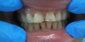 Результат реставрации центральных зубов фото до лечения