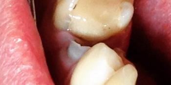 Задача восстановить разрушенную коронку зуба фото до лечения