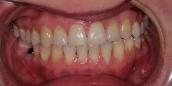 Перекрёстный прикус слева, результат до и после фото после лечения