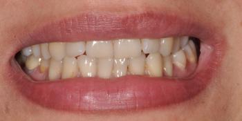 Перекрёстный прикус слева, результат до и после фото до лечения