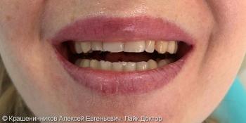 Установка 20 керамических виниров на зону улыбки, до и после фото до лечения