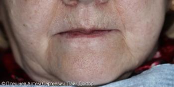 Полное обратился съёмное протезирование верхней и нижней челюсти фото до лечения