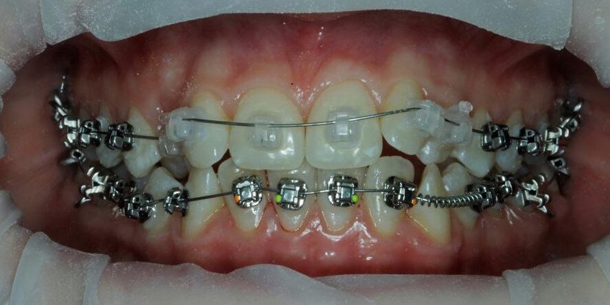 Скрученность передних зубов на верхней и нижней челюсти