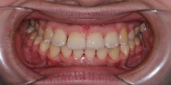 Гигиена полости рта после снятия брекетов фото после лечения
