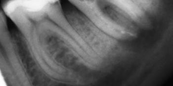 Пломбировка каналов гуттаперчей с последующей реставрацией коронки зуба фото до лечения