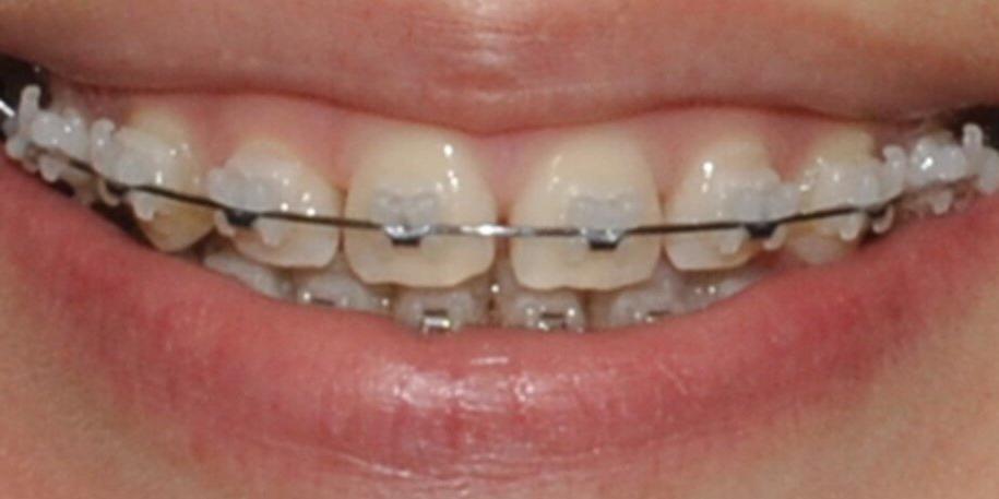 Убрали диастему между передними зубам верхней челюсти, до и после