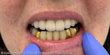 Протезирование при помощи керамических коронок фото после лечения
