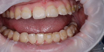 Гигиена полости рта после снятия брекетов фото до лечения